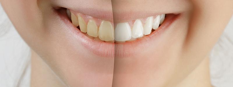 de07bfa94314d Éclaircissement dentaire Chelles - Esthétique dentaire - Dentiste ...