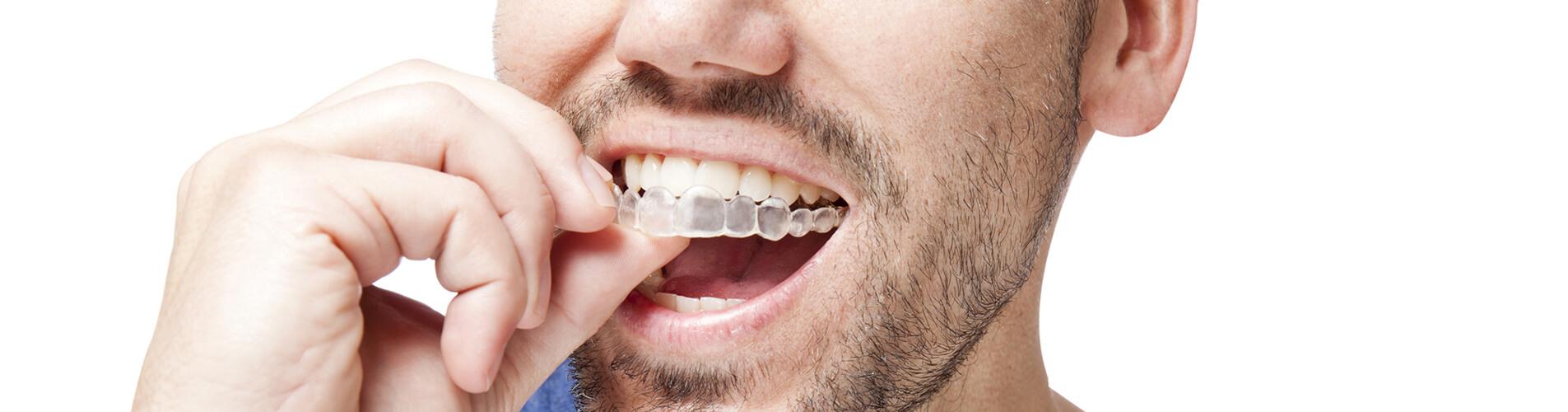 Dentiste Chelles